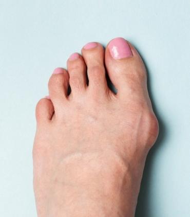 間違いだらけ外反母趾の靴の選び方
